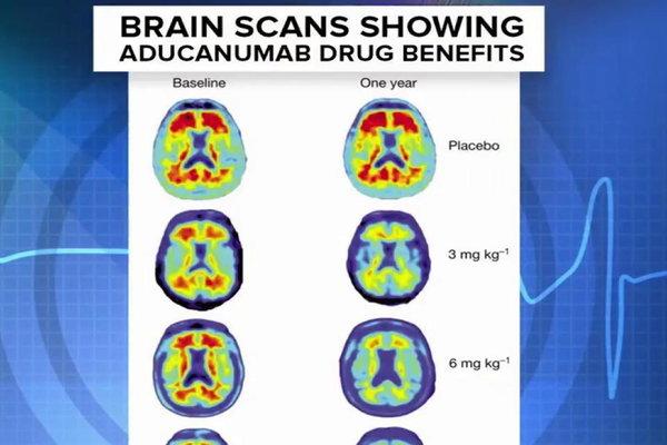 Cognitive enhancers side effects image 4